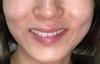 山口 美容室 美容院 シューケット/歯のホワイトニング/安い/タバコ/コーヒー/ブライダル